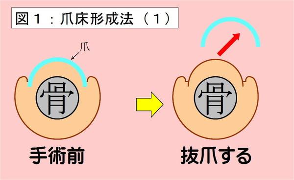 爪床形成法-01