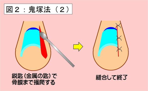 鬼塚法-02