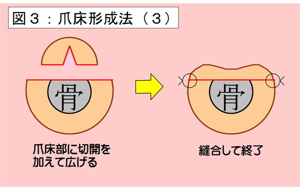 爪床形成法-03