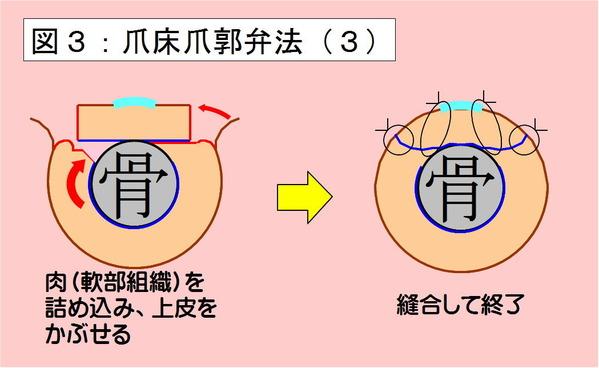 爪床爪郭弁法-03