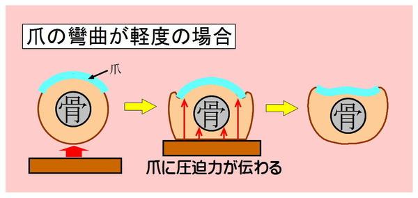 巻き爪-01