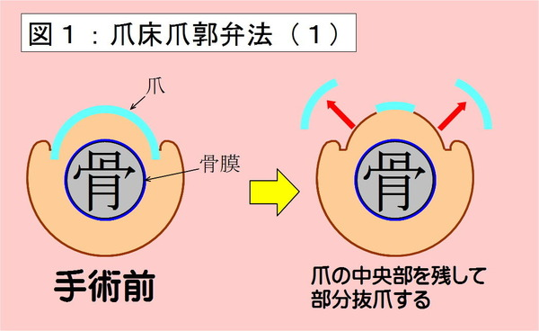 爪床爪郭弁法-01