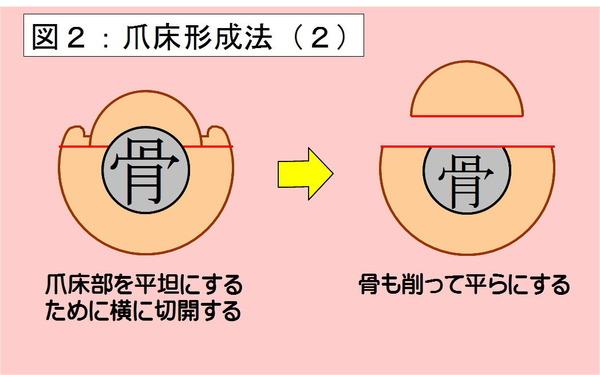 爪床形成法-02