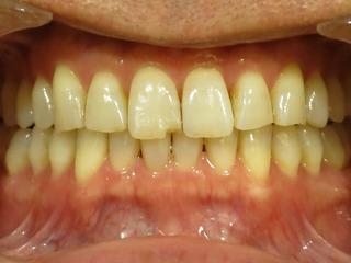 前歯に違和感
