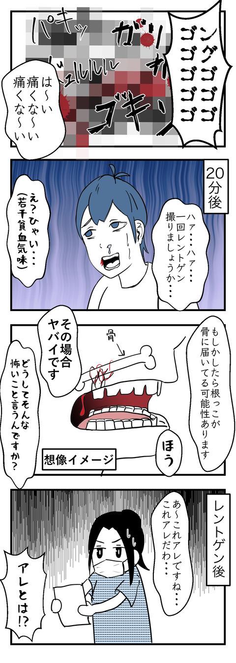 親知らず抜004