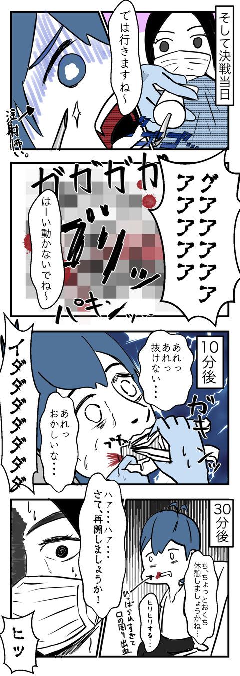 親知らず_003