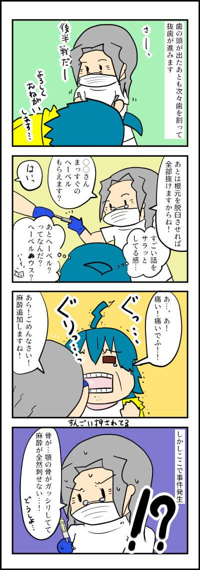 おやしらず4