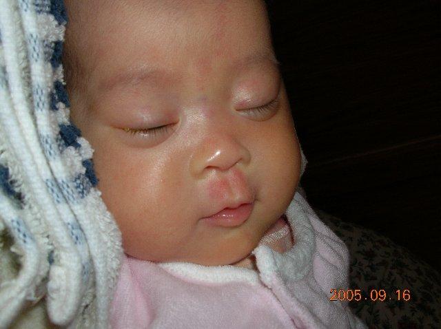 新生児 ニキビ