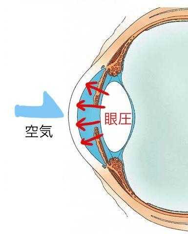 ノンコント眼圧