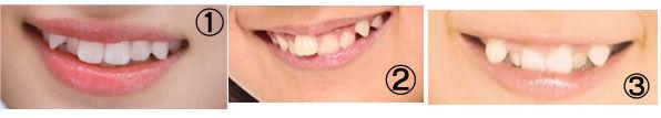 【エンタメ画像】超難問【歯並びだけでハロメンを当てるクイズ】