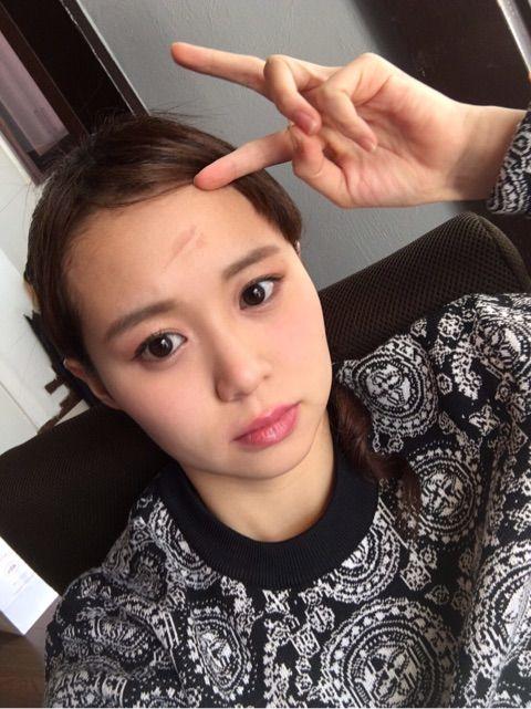 【エンタメ画像】《Juice=Juice》高木紗友希がヘアアイロンでおでこに火傷をした件