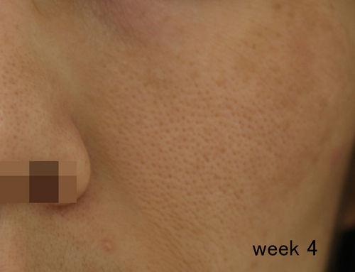アトピー性皮膚炎のステロイド外用剤離脱(ミラー)                moto_tclinic