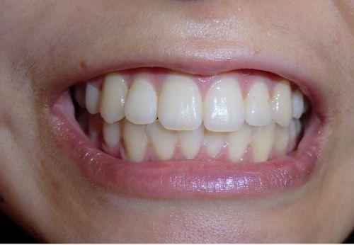 女子大生「ゆきちゃん」の歯