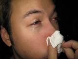 リーダー鼻炎