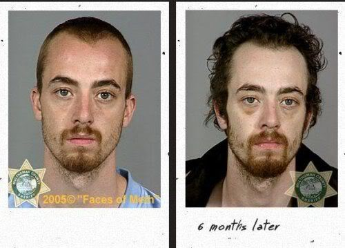 before_after_drugs_06.jpg