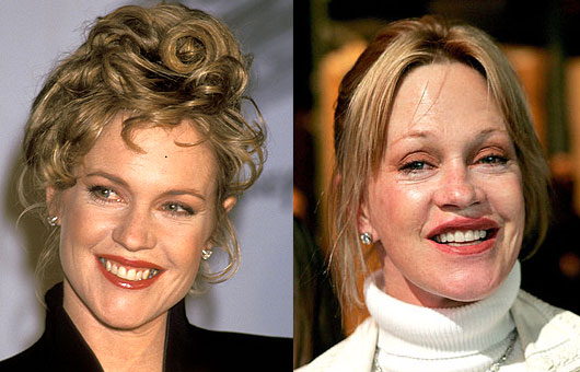 melanie-griffith-plastic-surgery.jpg