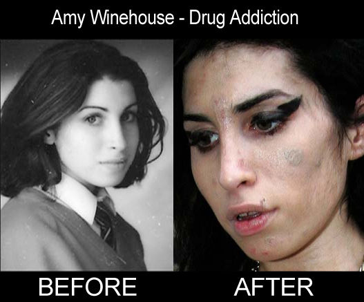 amywinehouse_before_after_drugs.jpg