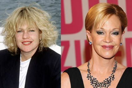melanie-griffith-plastic-surgery-2.jpg