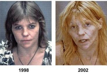 meth-junkie-before-after.jpg
