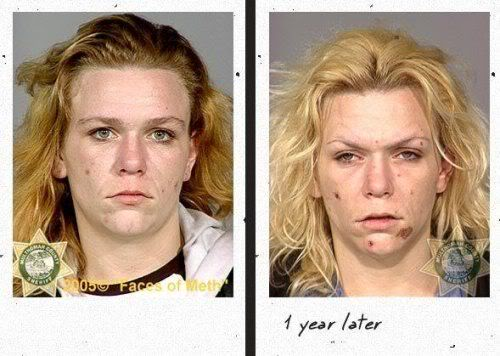 before_after_drugs_07.jpg