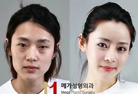 整形-韓国人-性格-特徴