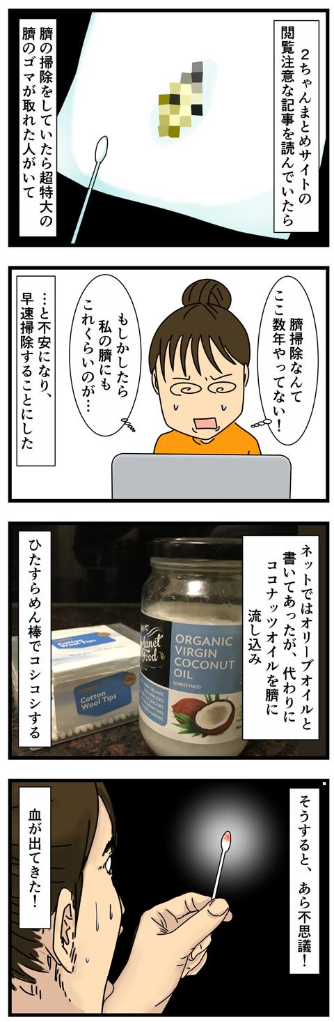 臍のゴマ掃除した (2)