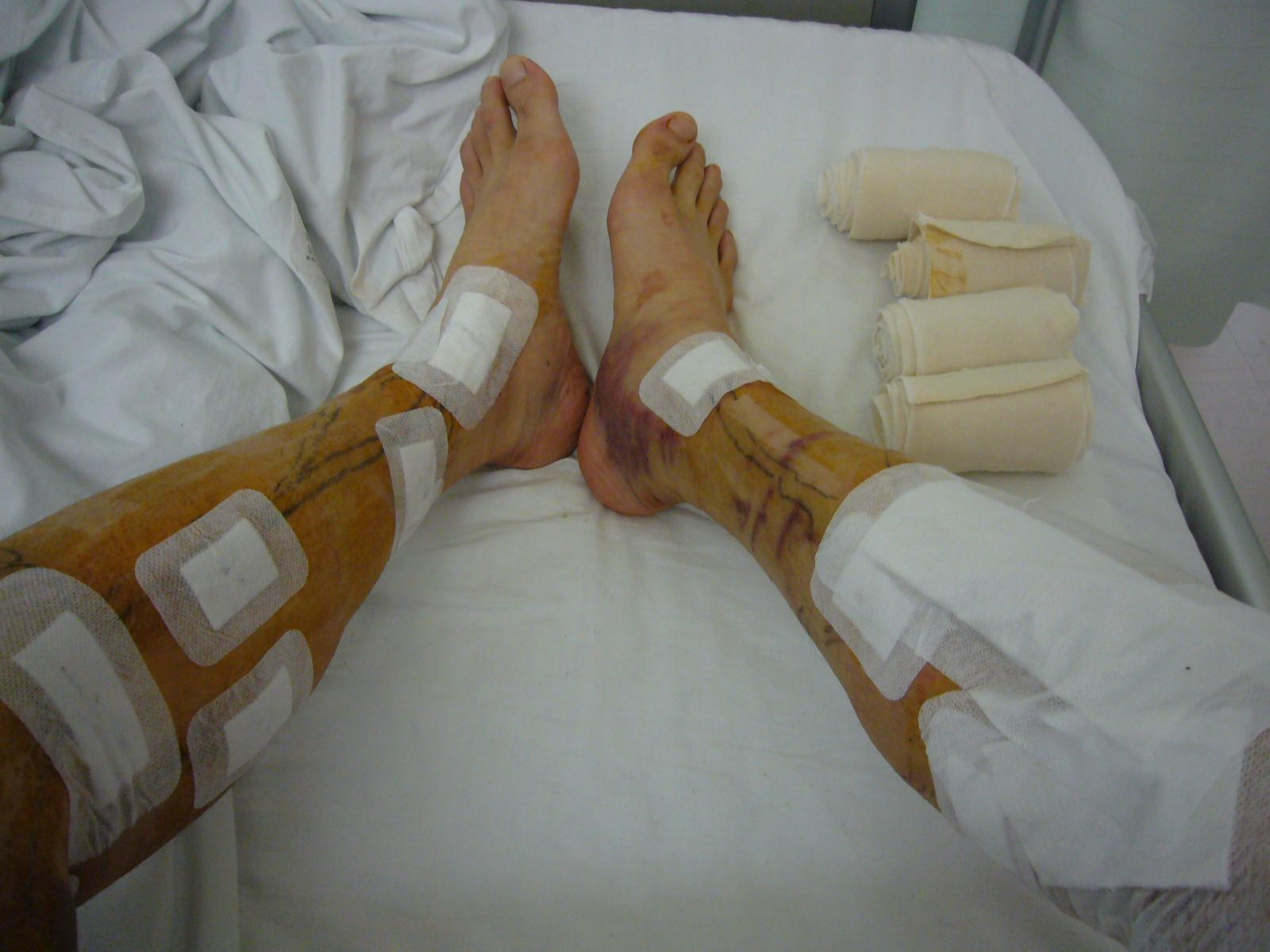 下肢静脈瘤3
