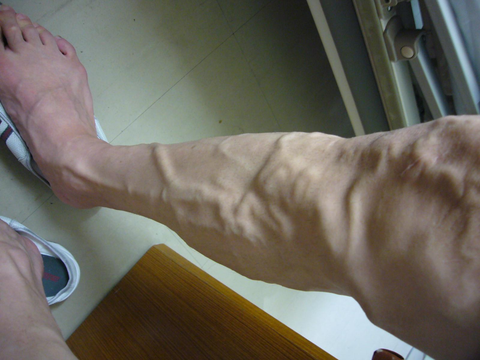 下肢静脈瘤手術前