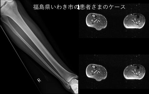 シンスプリントのレントゲンとMRI画像