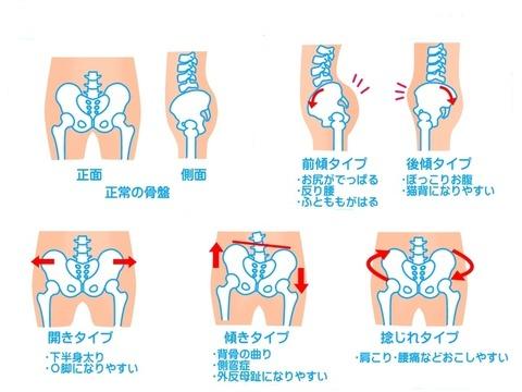 骨盤の歪み2
