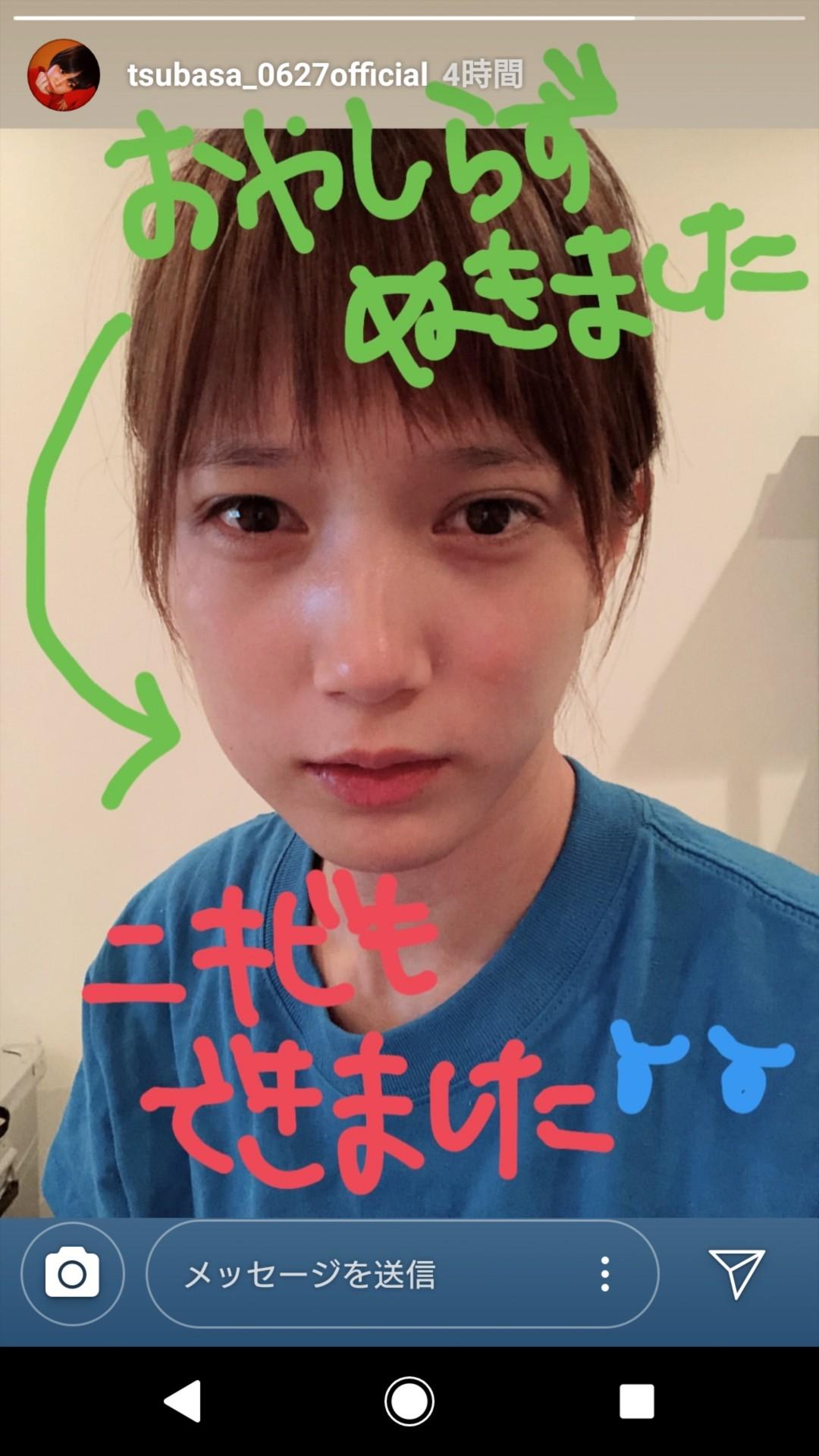 【悲報】本田翼さん、親知らずを抜く