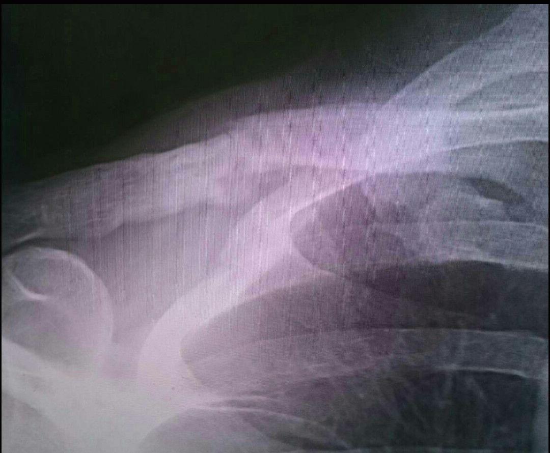 鎖骨骨折 偽関節 再骨折