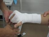ボクサー骨折2