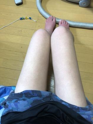 【画像】女だけど痛風女の脚晒すwwwwwwwwwwwwwwww