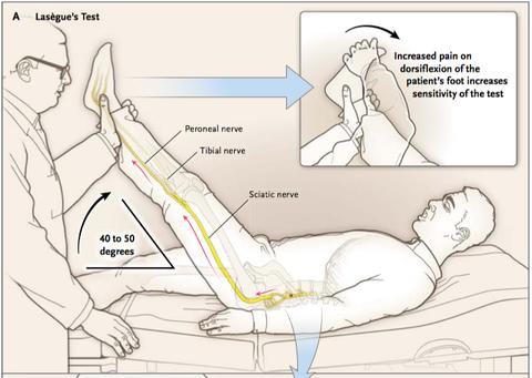 坐骨 神経痛 テスト