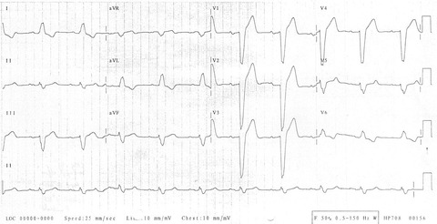 Left-bundle-branch-block-LBBB-4
