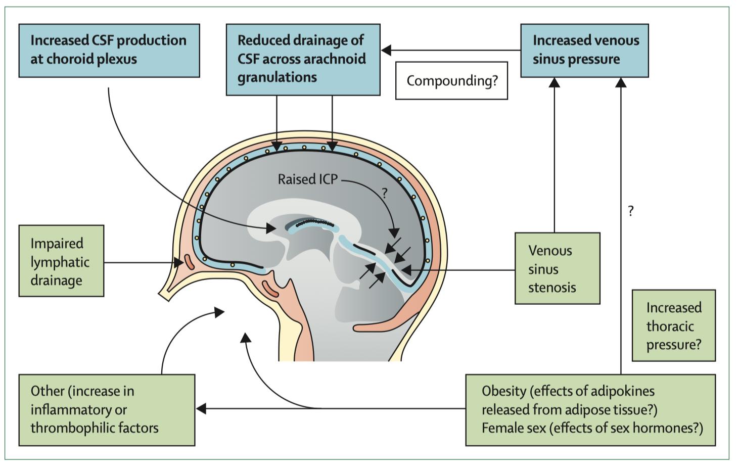 亢進 頭蓋 内圧