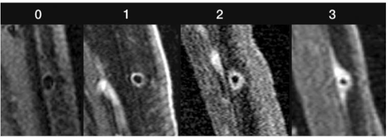 今日なに読もう〜病院総合診療医の論文ブログ〜巨細胞性動脈炎と造影MRIコメント