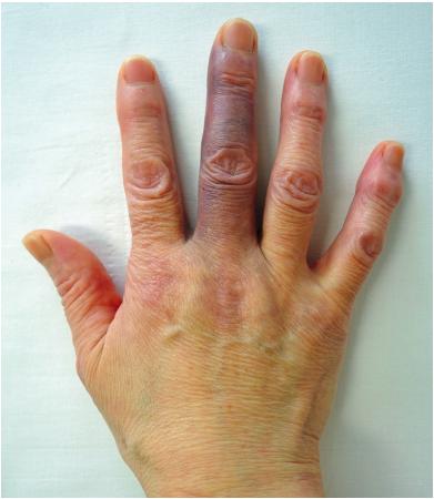 足の親指の腫れ 足の親指の裏の痛み:種子骨障害|よくある症状・疾患|札幌スポーツクリニック|札幌市中央区の整形外科・内科・リハビリ科