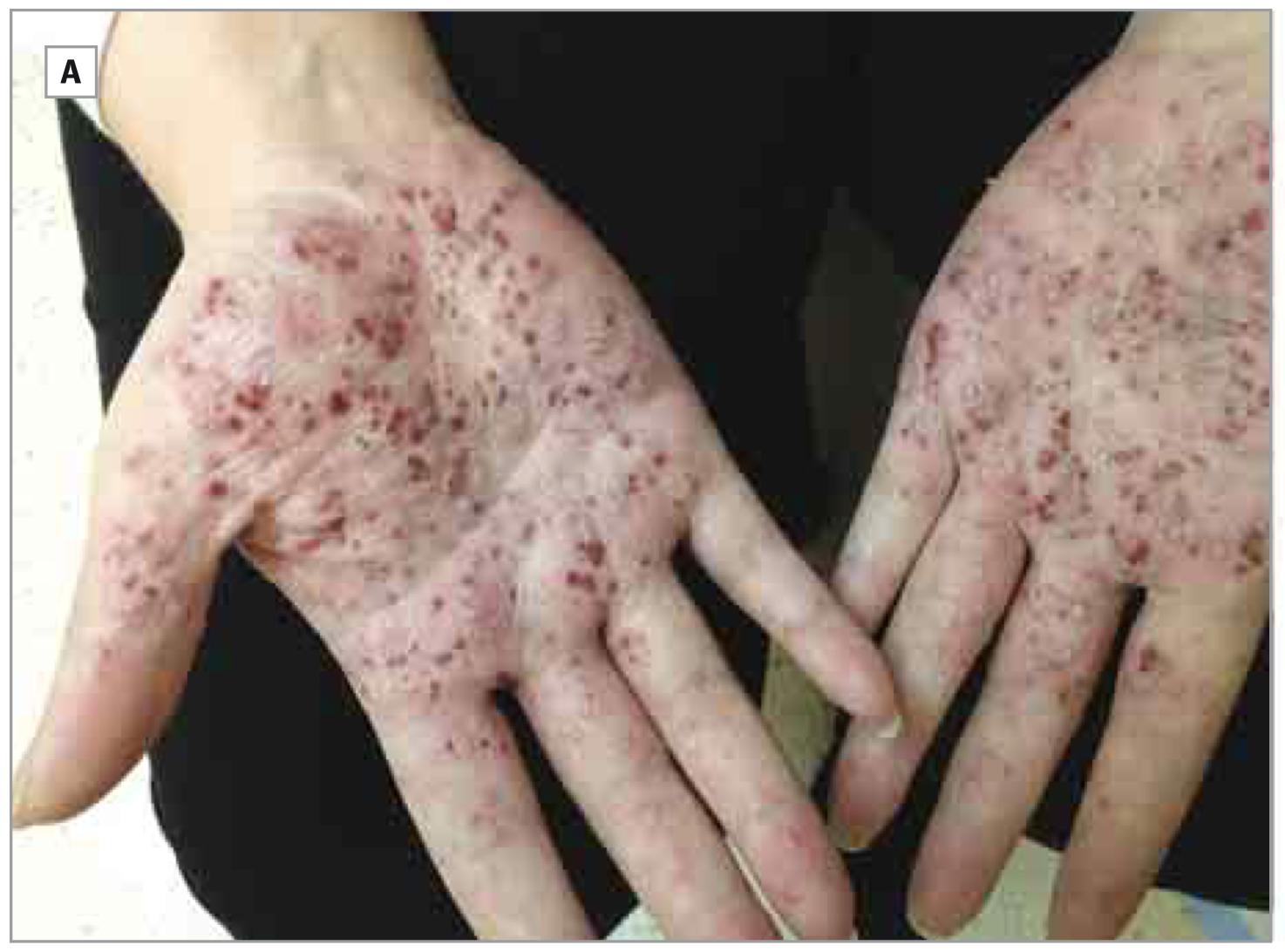 症 溶連菌 感染