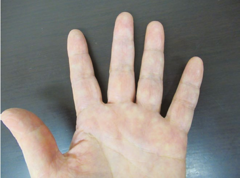 指 が 腫れる 一 本 だけ 第 二 関節