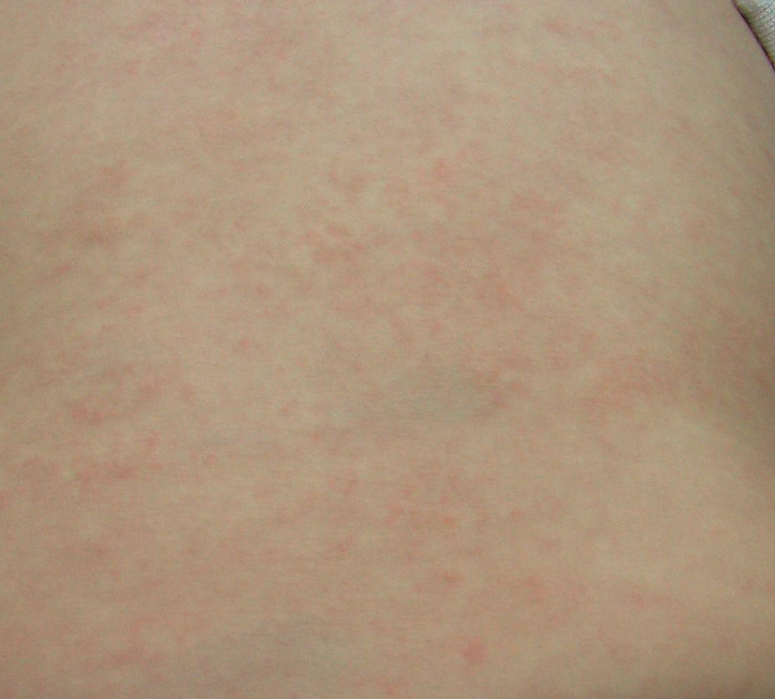発熱 かゆみ の ある 発疹