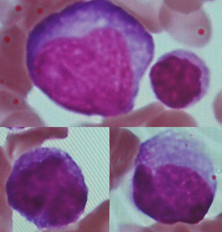 単 核 性 球 症 伝染