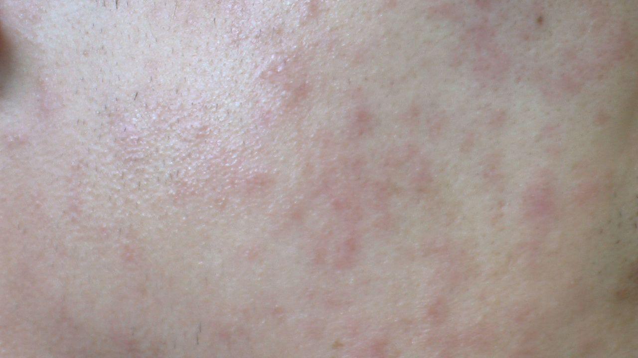 副作用 風疹 ワクチン
