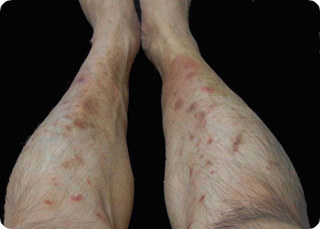 足 に 赤い 斑点 かゆい