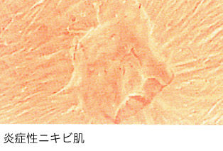 肌レプリカニキビ
