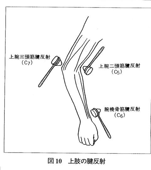 評価 腱 反射 リハビリで行う反射検査(深部腱反射・病的反射)の意義・目的を詳しく解説