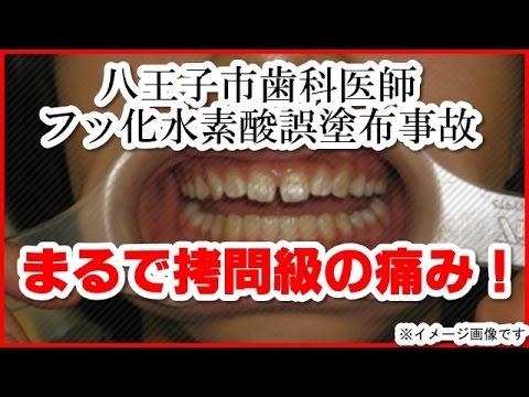 八王子 歯科 医師 フッ 化 水素 酸 誤 塗布 事故