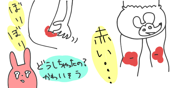 【なー】アトピー発症までのこと②