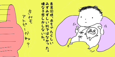 【みー】アトピー疑惑の次男